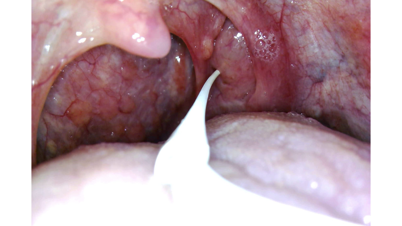 栓 ゴッソトリノ 膿